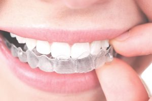 Ideal Dentistry Services - Invisalign